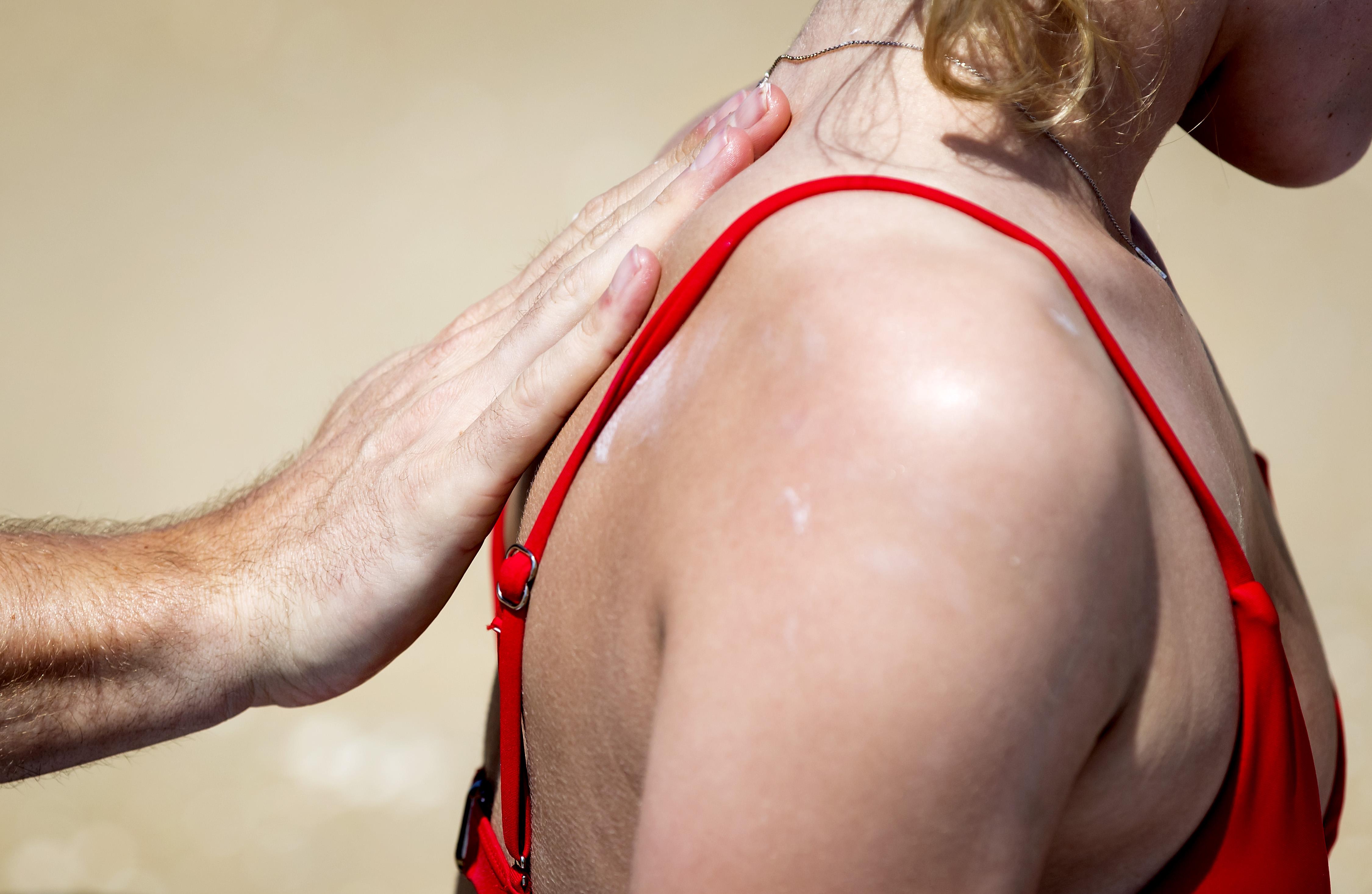 Foto van een dame wiens rug wordt ingesmeerd met zonnebrand.